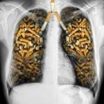 Eliminando un hábito negativo: fumar